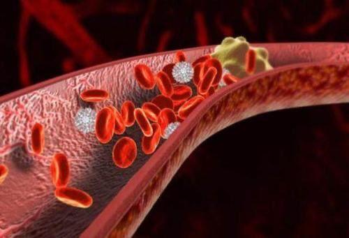 水蛭素、血栓、动脉斑块