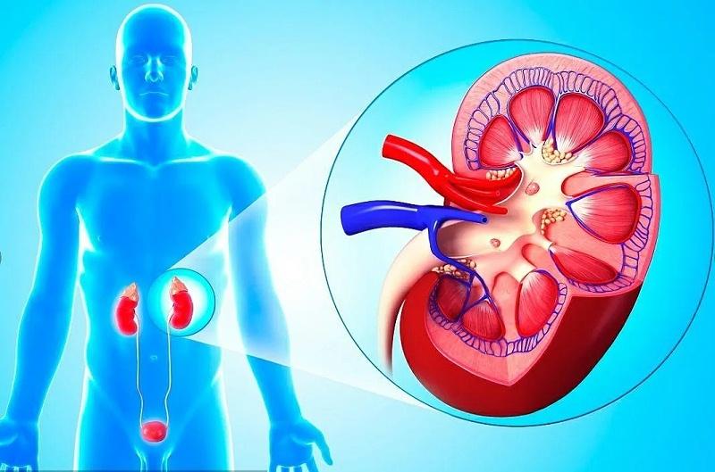 水蛭素、肾病、肾衰竭