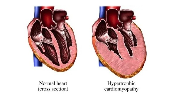 心脏也会变胖?气短、胸痛、头晕都跟它有关