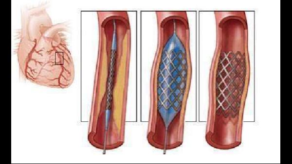科普知识分享第三弹:心脑血管疾病