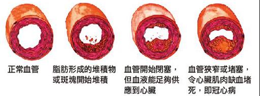 水蛭素、动脉斑块、动脉硬化